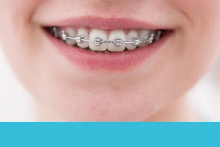 ortodoncia en Pérez de Juan